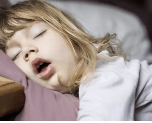 Mouth breathing and its effect on childhood development